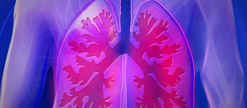 Самарская область поставила абсолютный рекорд по недельной заболеваемости пневмониями