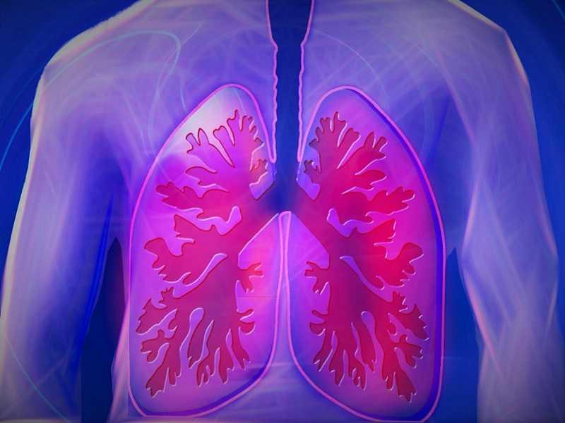 Смертность от пневмонии в Самарской области в 2020 году выросла почти в шесть раз