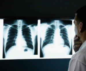 Тольяттинцы имеют право на бесплатную флюорографию в любой поликлинике?